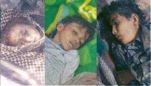 dead children yemen