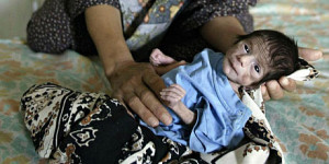 iraq_sanctions_malnutrition_460